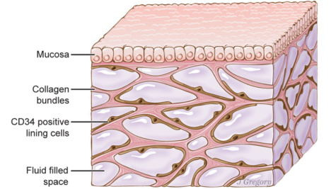 The interstitium, a newly discovered organ that lines nearly the entire body, is an interconnected web of thick connective tissue filled with fluid filled sacs. The organ could help doctors and researchers determine a person's health through examining the interstitial fluid (the liquid found within the sacs). (Illustration by Jill Gregory/Mount Sinai Health System/CC-BY-ND)