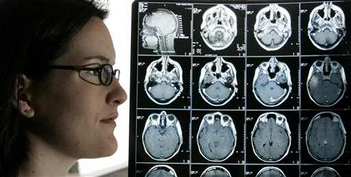 Kyla Nagel stands next to her brain scan at her home Friday, Jan. 28, 2005, in Springfield, Ore. Nagel was diagnosed with an aggressive brain cancer three years. After undergoing conventional treatment, including chemotherapy, and having the tumor return, she enrolled in a research regimen using an experimental drug and now her brain scans show no sign of cancer.  A recent study shows that brain cancer in adults is a dreaded diagnosis with few established treatment guidelines _ resulting in wide variations in treatment that risk making things even worse for some patients.  (AP Photo/Rick Bowmer)